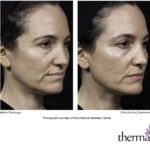 Thermage Face