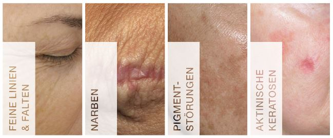 Fraxel Hautverjüngung